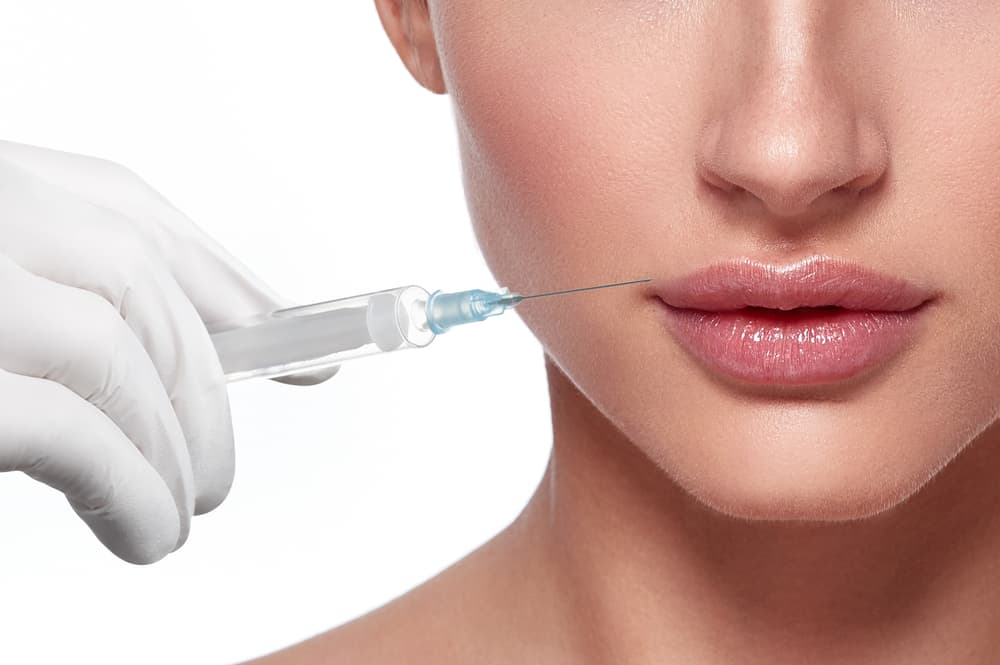 Everything You Need to Know About Lip Fillers