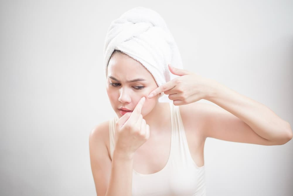 Acne Scars — Why Are They So Persistent?
